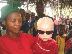 Bimba albina con la madre in Congo