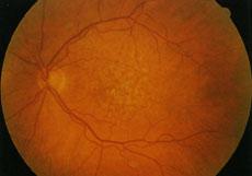 Retina colpita da AMD: la forma secca non è attualmente curabile