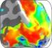 Risonanza magnetica per immagini (particolare)
