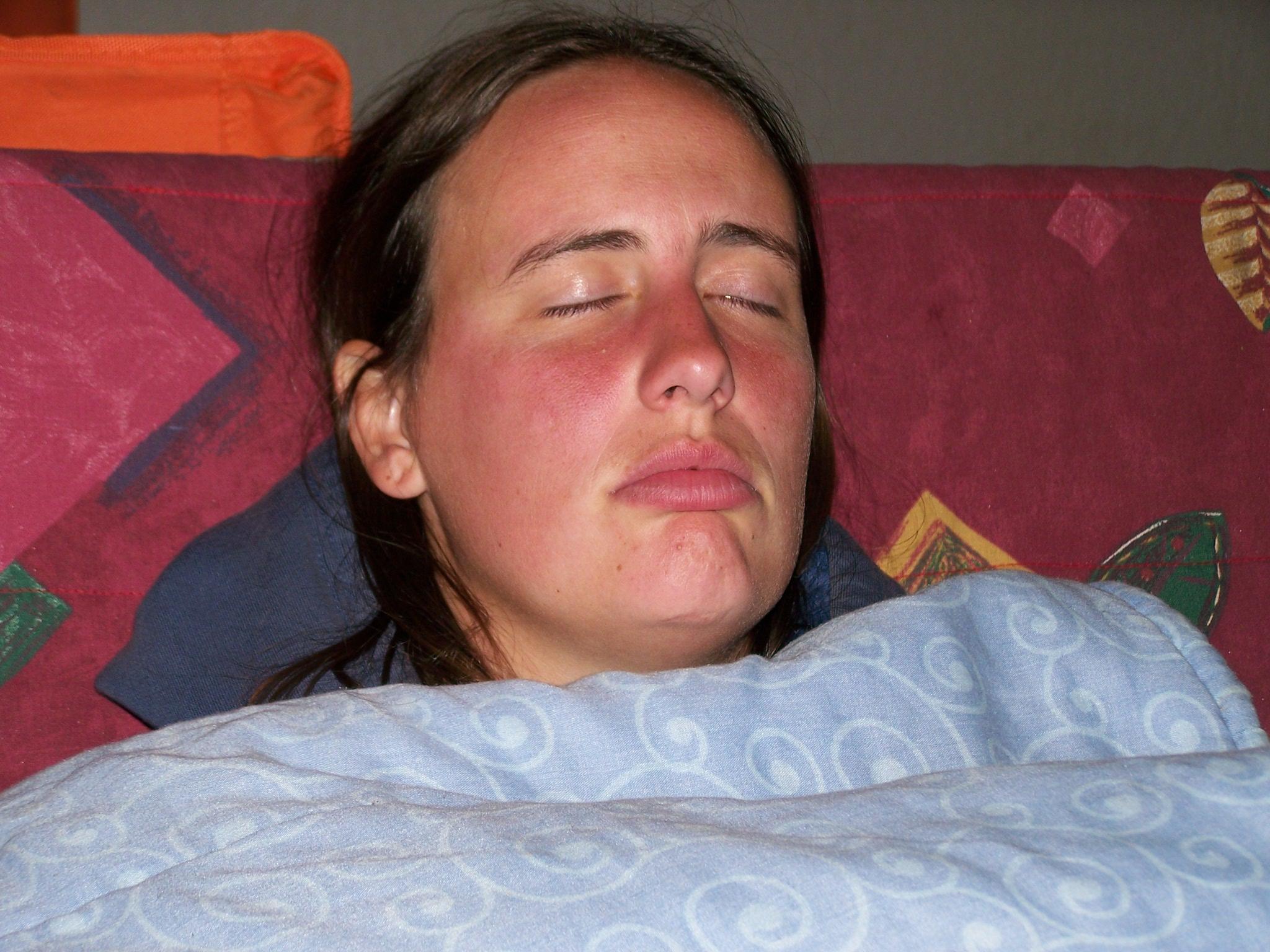 Persona colpita da malaria