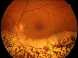 Fondo oculare caratteristico di malato di retinite pigmentosa