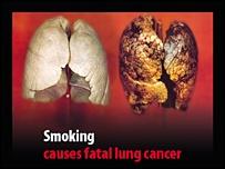 Il fumo causa un cancro fatale ai polmoni (avvertenza grafica su pacchetto di sigarette inglese)