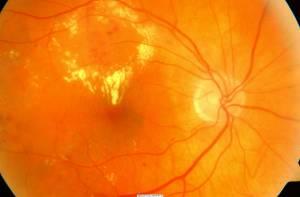Retina di diabetico con èdema maculare