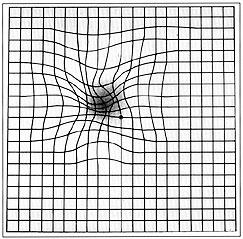 Test di Amsler: i malati di AMD osservano una deformazione delle linee rette in prossimità del centro del campo visivo e una macchia più scura o di non visione
