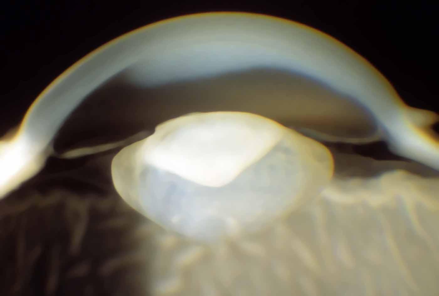 Cataratta congenita (Fonte: missionforvisionusa.org)