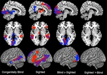 Attività del cervello a confronto. Da sinistra corteccia di un cieco congenito, di un vedente, le aree attivate in più dai ciechi e quelle attivate in più dalla corteccia dei vedenti (Fonte: MIT)