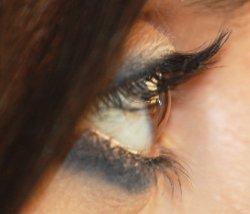 Cornea sana (superficie trasparente dell'occhio)