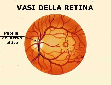 Una anomalia dei vasi della retina può essere indice di una malattia generale (sistemica)