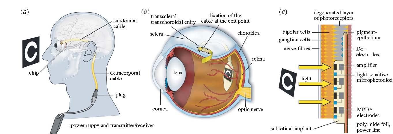 Impianto da 1500 pixel collocato sotto la retina da una équipe guidata dalla Università di Tubinga (Fonte: Proceedings of the Royal Society, 3 novembre 2010)