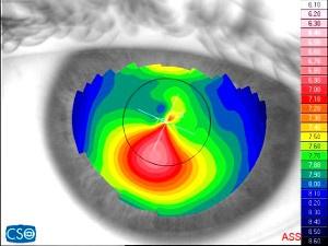 Cheratocono con astigmatismo irregolare (Foto: Associazione malati cheratocono)