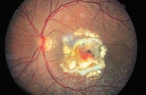 retina di malato affetto dalla degenerazione maculare legata all'età (AMD umida)