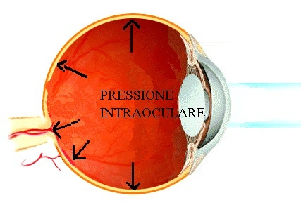 glaucoma-immagine_pressione_intraoculare.jpg
