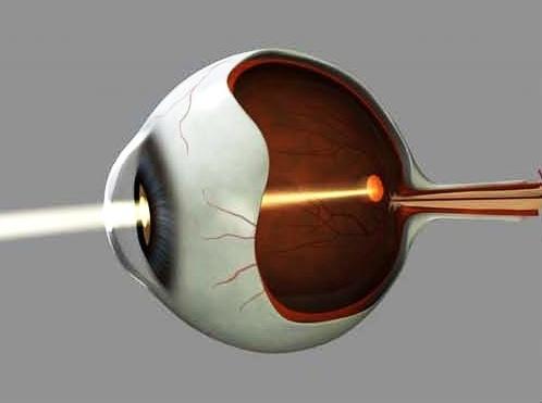 La luce colpisce la macula, il centro della retina, sul fondo oculare (Fonte: Lund University-Fredrik Ghosh)
