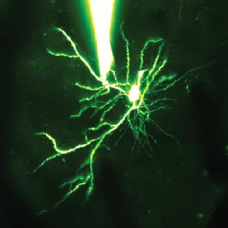 Neurone della corteccia visiva di topo al microscopio (evidenziato mediante colorante