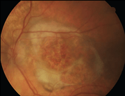 Fondo oculare danneggiato da AMD umida (detta anche essudativa o neovascolare)