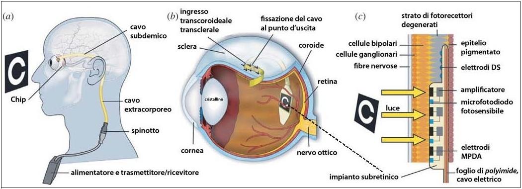 Schema di funzionamento di un occhio bionico messo a punto dalla Università di Tubinga (Germania)