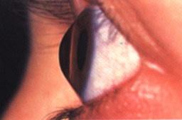 Occhio colpito da cheratocono