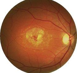 Fondo oculare di persona colpita da maculopatia di Stargardt