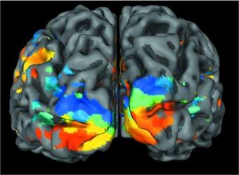 Corteccia visiva attiva (evidenziata a colori. Immagine: Università di Monaco, Germania)