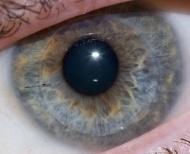 cornea_trapiantata-web-photospipffeaf1bfbb6e4acfe8ed33d293aa7a3e.jpg