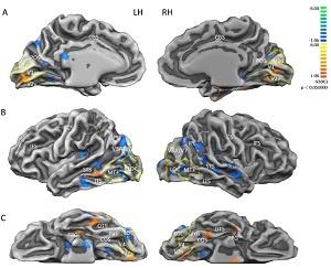 cervello-aree_attive_prima_e_dopo_impianto_protesi_retinica-fonte-plos_biology.jpg