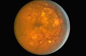 retinopatia_diabetica-fundus_oculi-photospip367f558656488f45ae4fff4cc9a24ebb.jpg