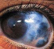 occhio-glaucomatoso-web-2.jpg