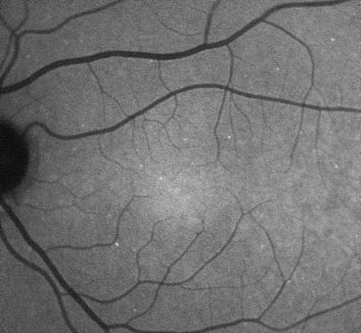 apoptosi_retinica-da-glaucoma-darc-esempio-web.jpg