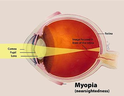 Il bulbo oculare di un miope è più allungato della norma è il punto di fuoco cade davanti alla retina (Fonte nei.nih.gov)