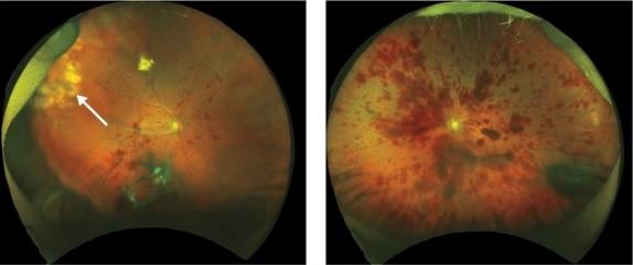 Danni retinici provocati da iniezioni intravitreali di cellule staminali (Fonte: NEJM, 2017)