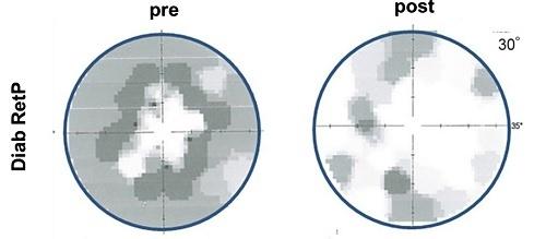 Campo visivo danneggiato a causa della retinopatia diabetica e parzialmente ripristinato dopo trattamento con lieve corrente elettrica (Fonte: B. A. Sabela et al.,